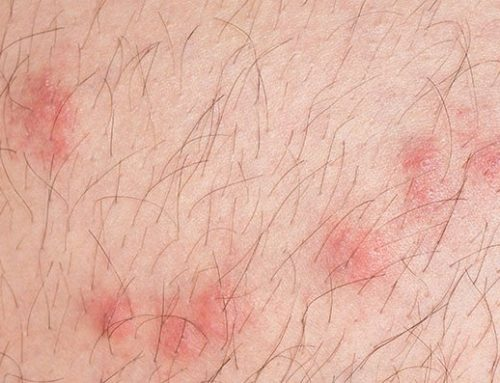 What do Flea Bites Look Like?
